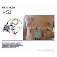 ECG Stethoscope