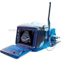 B mode Ultrasound Scanner