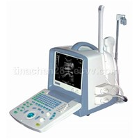 Full Digital Portable Ultrasound Scanner -BW8S
