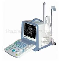 Full Digital Portable Ultrasound Scanner -BW8S
