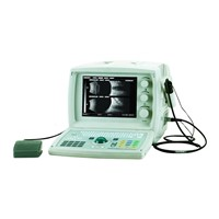 Ultrasound A/B Scanner for ophthalmology