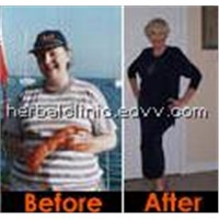 Weight Loss Herbal Product| Ayurvedic Medicine For Weight Loss |  Weight Loss Slimming Capsules