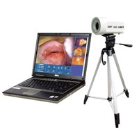 Digital Electronic Vaginoscope (DM601)