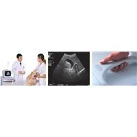 Portable Digital Ultrasound Diagnostic Scanner