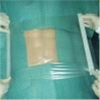 Surgical Film