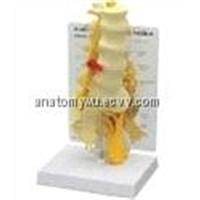 Lumbar Sacral Neural (SE/JX002)