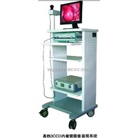 CCD Camera Endoscopic Picture Dealing System