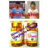Effective weight loss pills for women