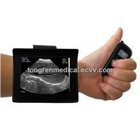 Veterinary Wrist Ultrasound Scanner (KR-8288V)