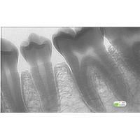 dental x-ray sensor