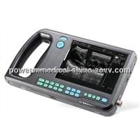 Palmtop Type Ultrasound Scanner WHYB3000