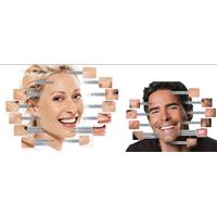 HA Filler Dermal Filler 100%Pure Cross Linked Hyaluronic Acid For Anti-wrinkle