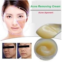 Acne treatment cream Acne Removing Cream OEM oil control Acne cream