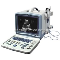 Ultrasound Scanner (YD9000A Full Digital)