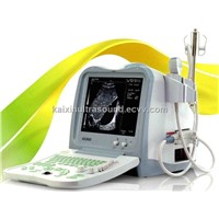 Full-digital Portable Veterinary Ultrasound Scanner(KX2600VET)