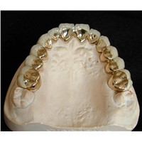 Gold Porcelain False Teeth