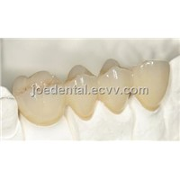 Dental Crown Co-Cr PFM Crown