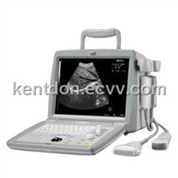 OSEN800B Portable Ultrasound Scanner