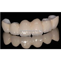 Dental Fixed Restoration Zirconia Crown and Bridge