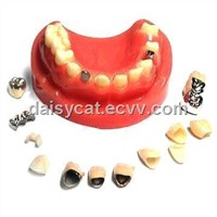 zirconia,PFM ,Inlay.FMC,Captet,Glod