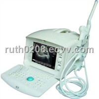 Ultrasound ,Ultrasound Scanner,B-Ultrasound Scanner,B-Ultrasound Diagnostic Equipment