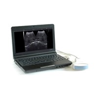 Notebook digital diagnostic Ultrasound System for human and veterinary use