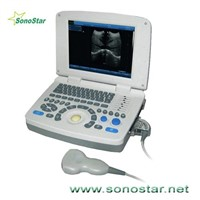 SS-10 Laptop PC Based Ultrasound B Scanner(3D image optional)