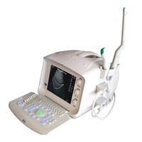 CE Approved Digital Portable Ultrasound Scanner (XK21355)