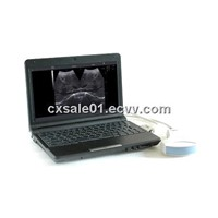 (CX6000B) Notebook digital diagnostic Ultrasound System