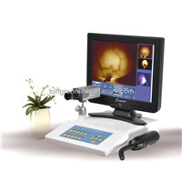 Portable Infrared Mammary Diagnostic (TR5000B)