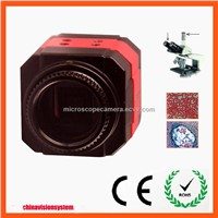 China Professional Cheap 5MP USB Microscope Camera