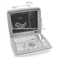 Full Digital Portable Ultrasound Scanner (KR-2088V)