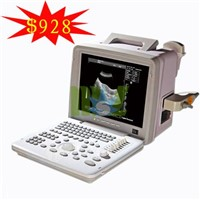 Portable ultrasound machine price & B-ultrasound scanner - MSLPU01