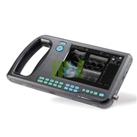 Best&full digital ultrasound scanner price - MSLDU08