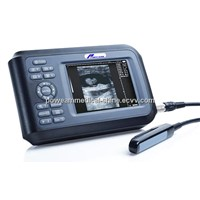 Palmtop Type Digital Ultrasound Scanner WHYB4000