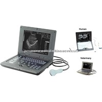 Notebook Laptop Ultrasound Scanner WHYB2018