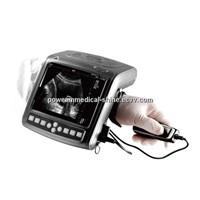 Full Digital B Mode Ultrasound Scanner WHYB2000/wrist type ultrasound scanner