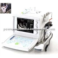 Veterinary Ultrasound Scanner-VET WHYC-30P/ Echocardiography machine / ultrasonic transducer mhz