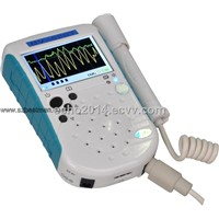 8MHz Bidirectional vascular doppler Detector blood velocity and Peripheral Vessel Detector