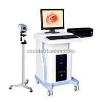 "TF-6000 19"" LCD Screen Trolley electronic digital colposcope"