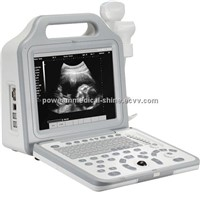 WHYC50P Digital Portable LCD Ultrasound Scanner