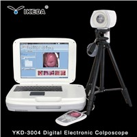 ykd-3003  Portable Digital Colposcope with Camera for Clinic