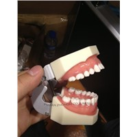 Prosthetic Restoration Jaw Model (28 teeth)