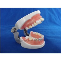 typodent dental jaw model for practice extract tooth