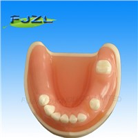 Medical Science Dental Implant Model with Soft Gingiva