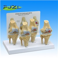 4-Stage Osteo-Arthritic Knee Anatomical Model