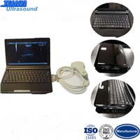 LCD Screen PC Based Small Laptop Ultrasound Equipment