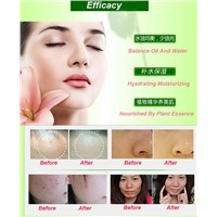 Acne Emulsion Acne removing Lotion