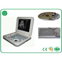 PL-3018 Full Digital Laptop Ultrasound Scanner