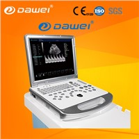 DW-C60Plus Portable Laptop Doppler Ultrasound Machine & 3D Ultrasound for Hospital